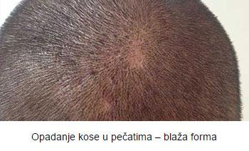 alopecija-a002