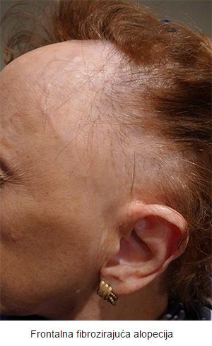 alopecija_01-v
