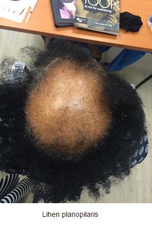 alopecija_02-v