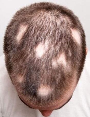 alopecija_a001