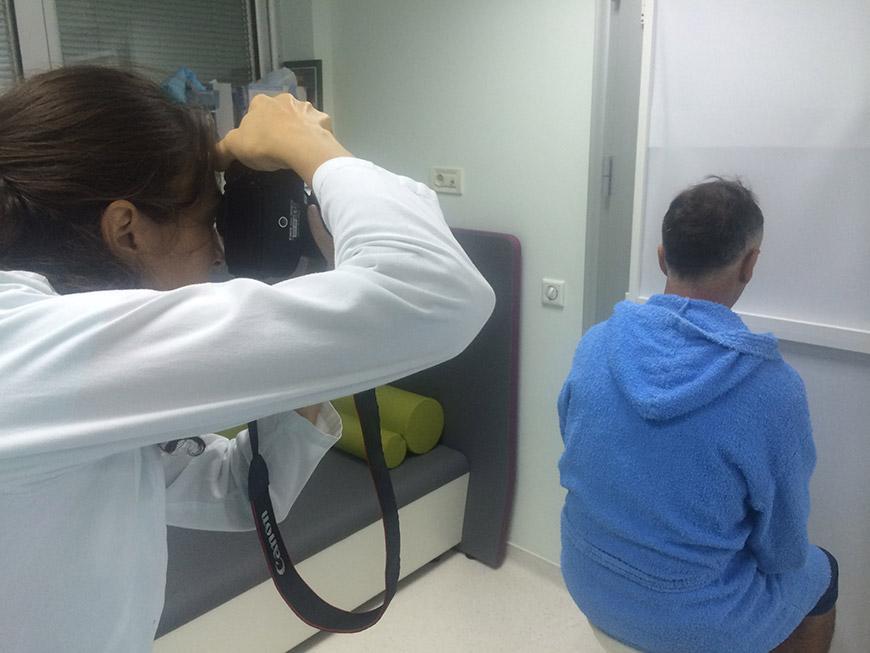transplantacija-kose-01