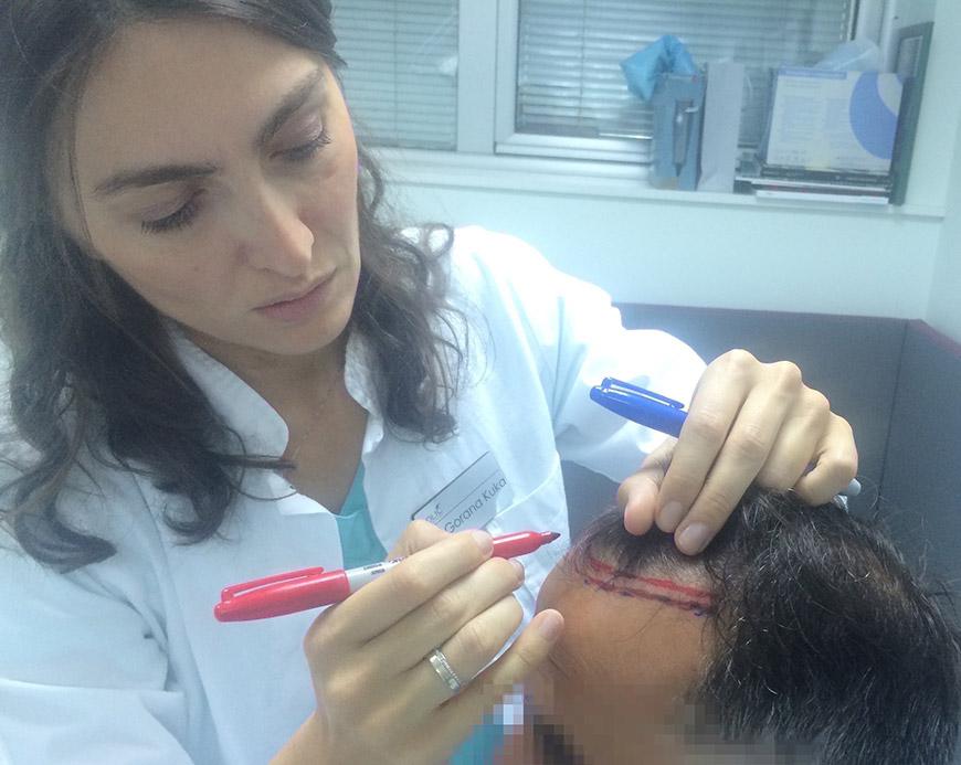 transplantacija-kose-02