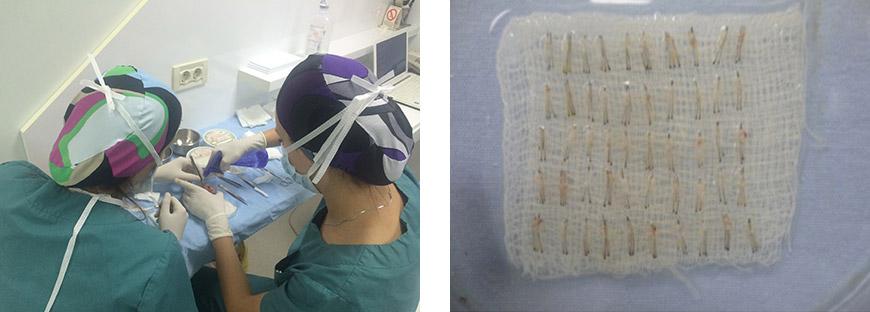 transplantacija-kose-04