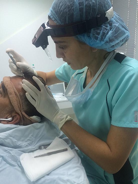 transplantacija-kose-05