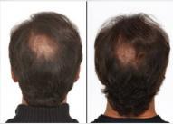 Dijagnoza. Androgenetska alopecija