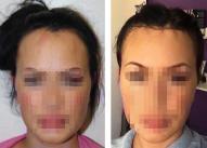 Hirurško pomeranje prednje linije kose