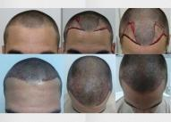 Transplantacija kose od planiranja do rezultata