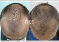 Zalisci i prednja linija kose