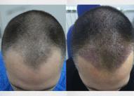 ransplantacijom kose moguce je vrlo uspesno korigovati zaliske.