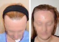 Pacijentkinja dan nakon transplantacije kose